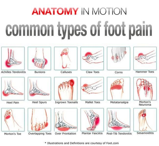 Common type of foot pain